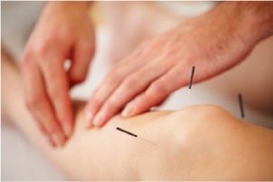 dry needle acupuncture
